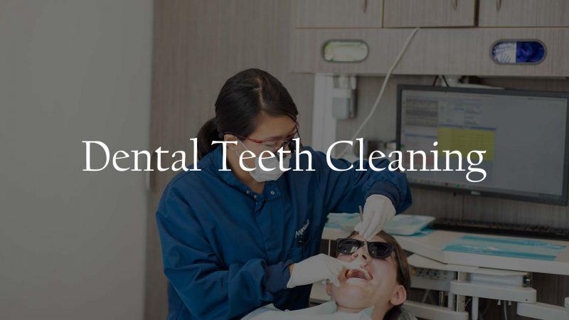 Dental Teeth Cleaning Service Houston