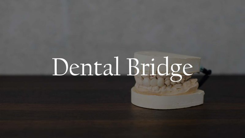 Dental Bridge Service Houston