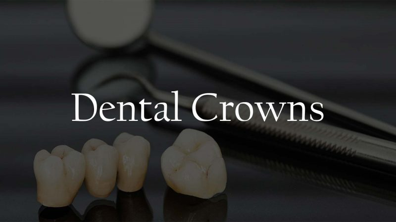 Dental Crowns Service Houston